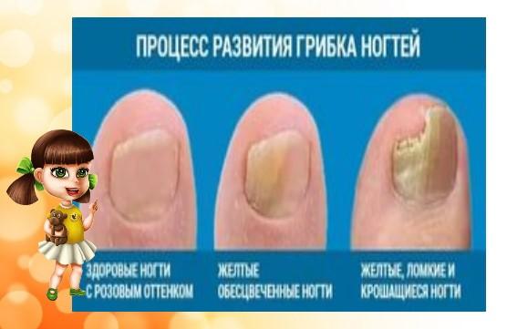 Болезни ногтей на ногах и описание лечение