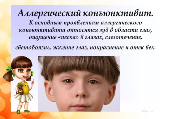 аллергический